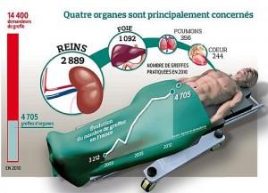 transplantations